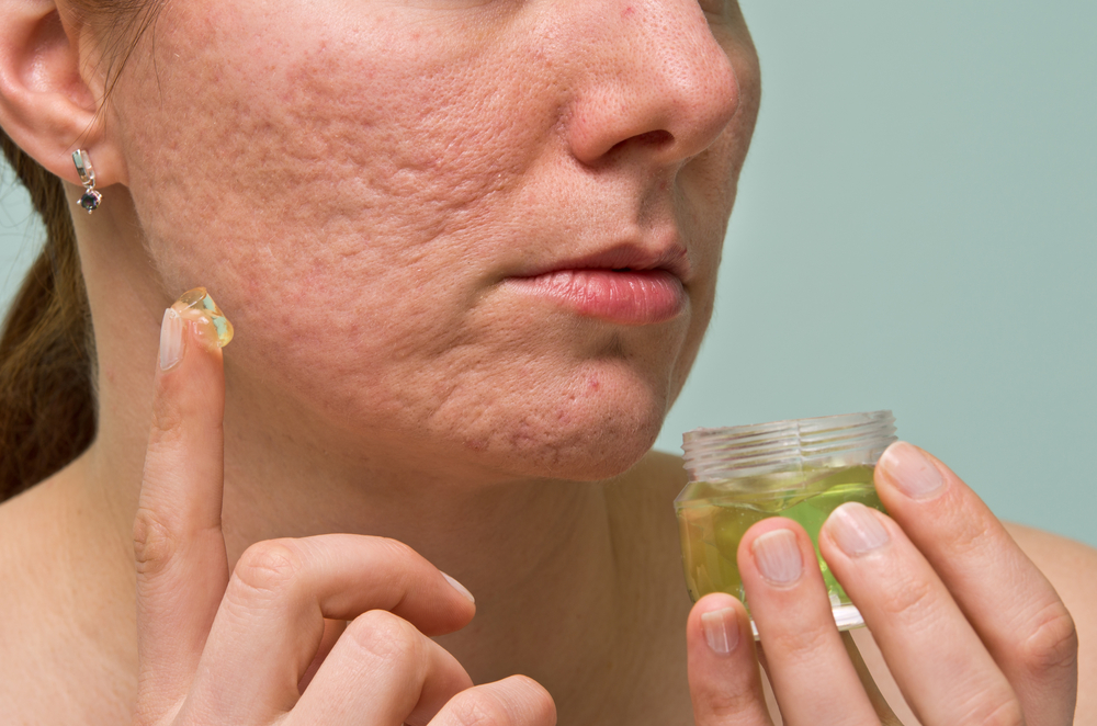 Woman Applying treatment to her acne scars