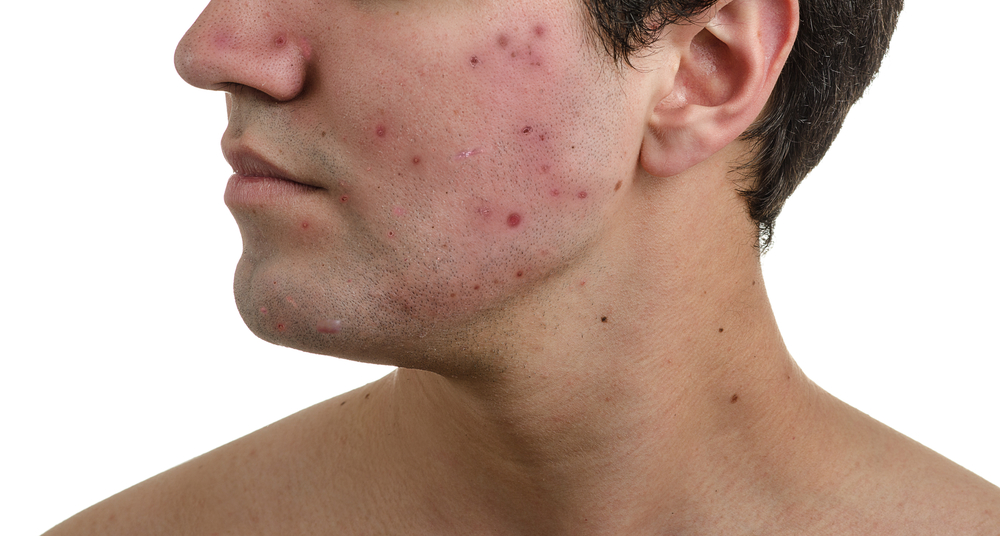 Man's face with acne scars on cheek