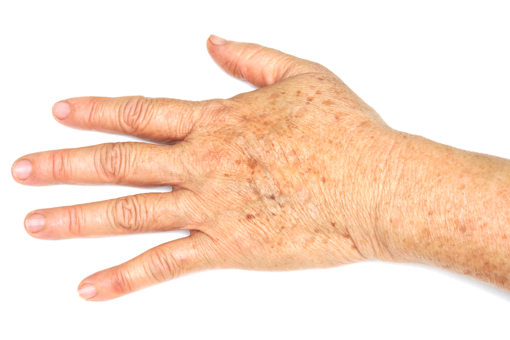 Hand with age spots