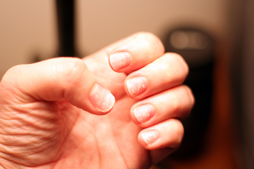 Brittle Damaged Nails