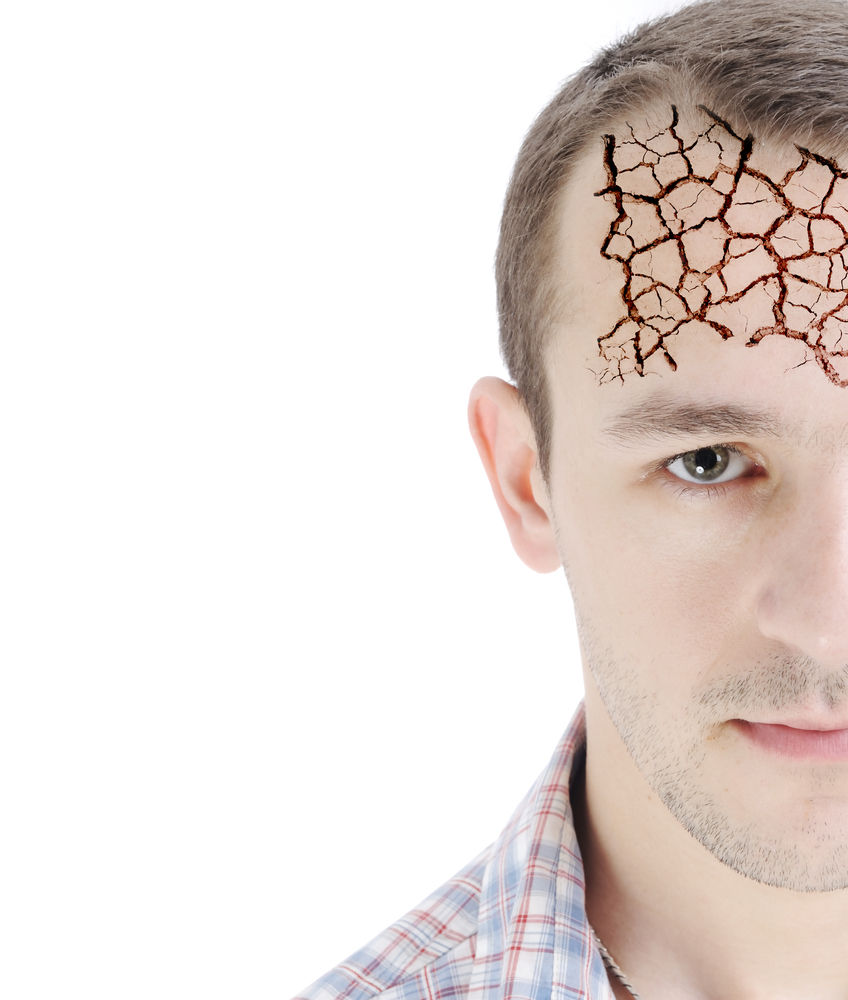Image of man with cracked looking forhead symbolizing brain damage
