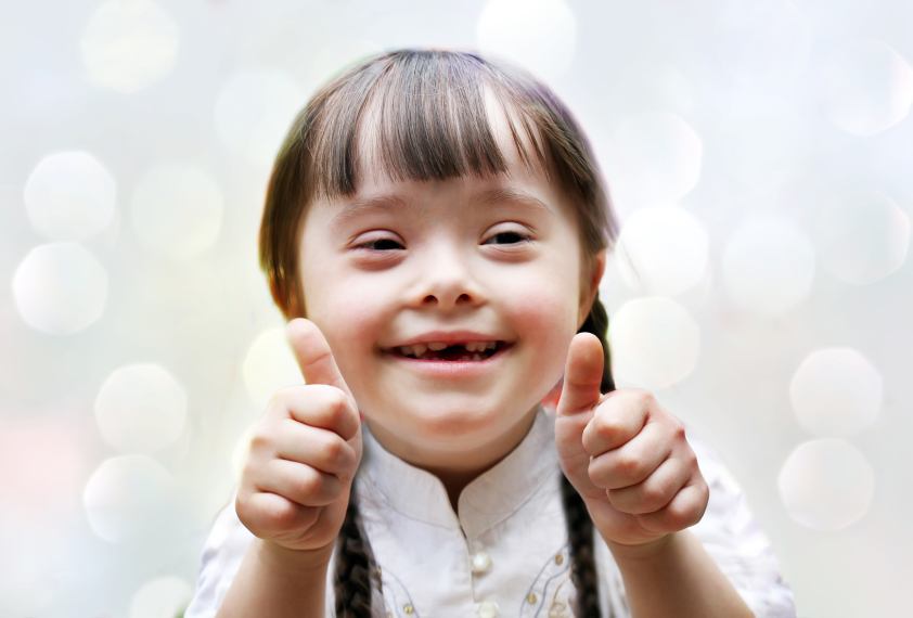 downs syndrome With a population of around 330,000, iceland has on average just one or two children born with down syndrome per year, sometimes after their parents received inaccurate test results.