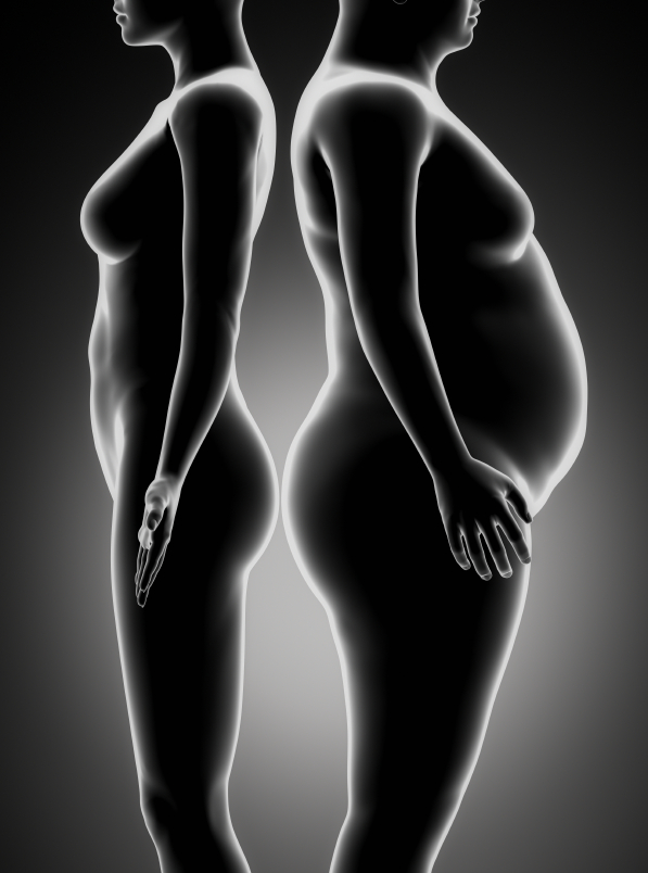 Fat and thin woman comparison