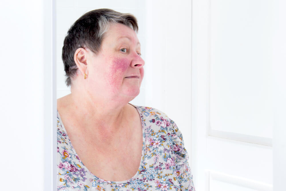 woman with rosacea looking in the mirror