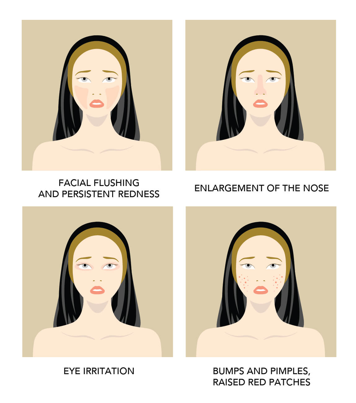 rosacea in graphics