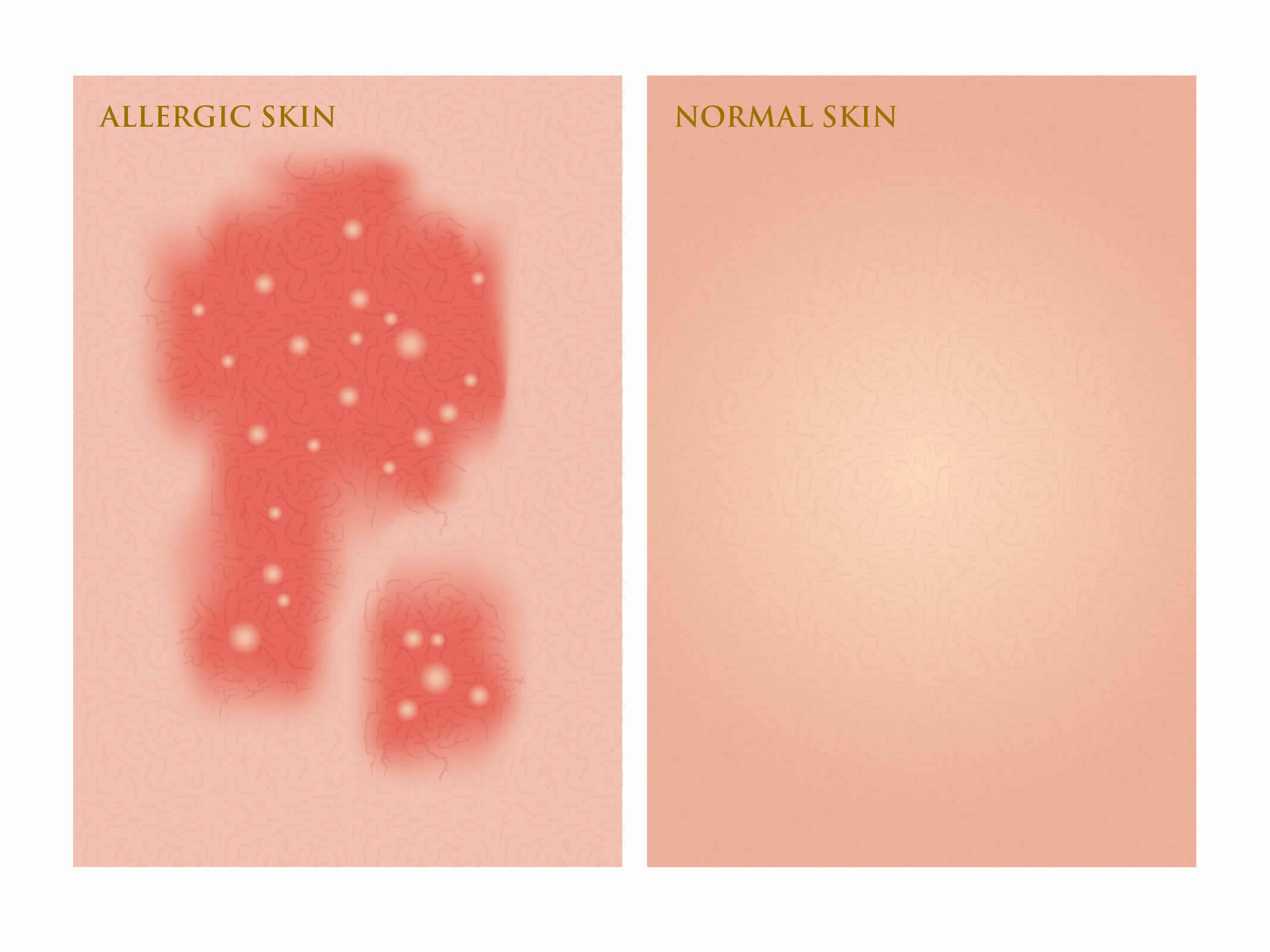 allergic vs normal skin