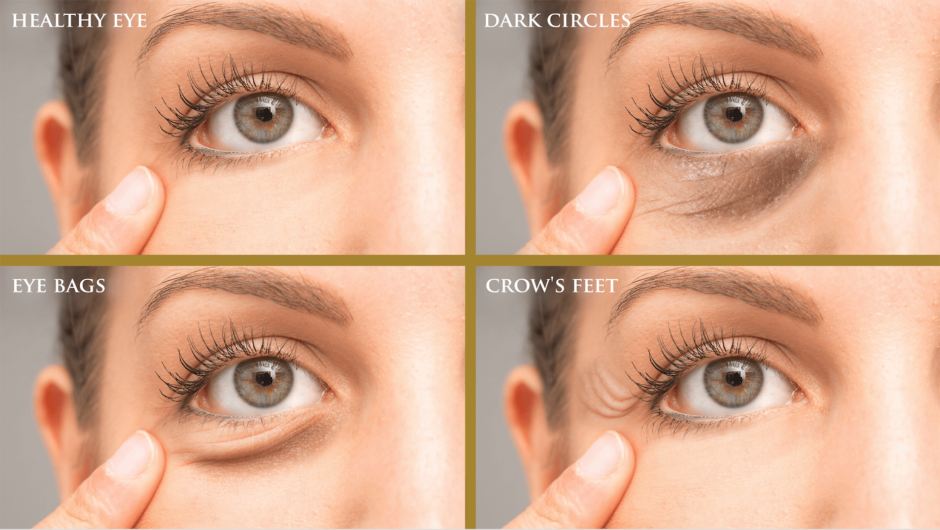 different skin concerns around the eyes