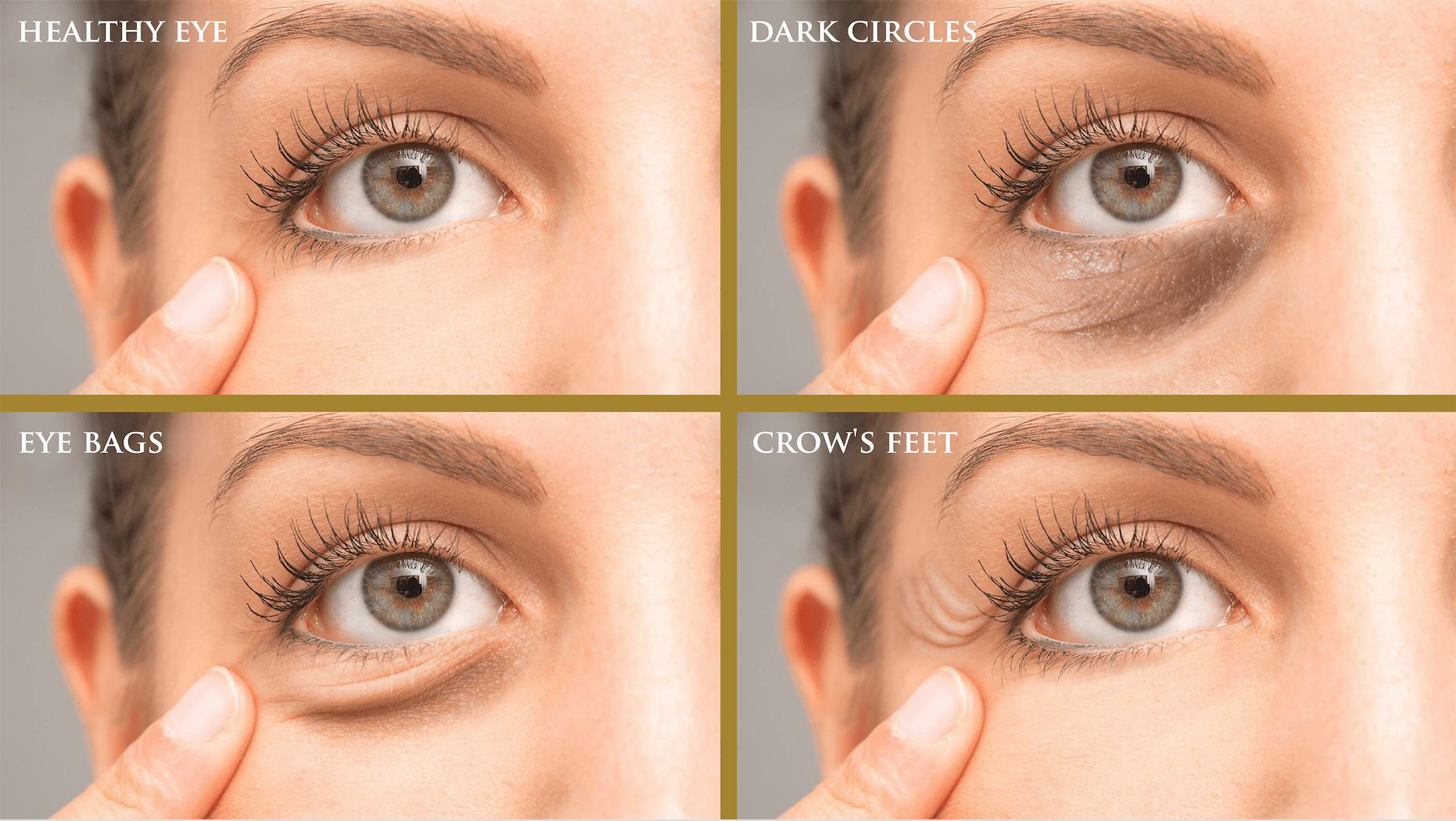 different skin concerns around the eyes