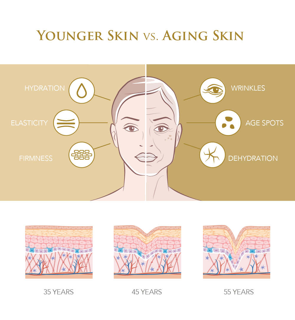Infographic on younger vs aging skin