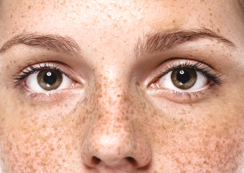 Closeup of freckles and dark spots on woman's face