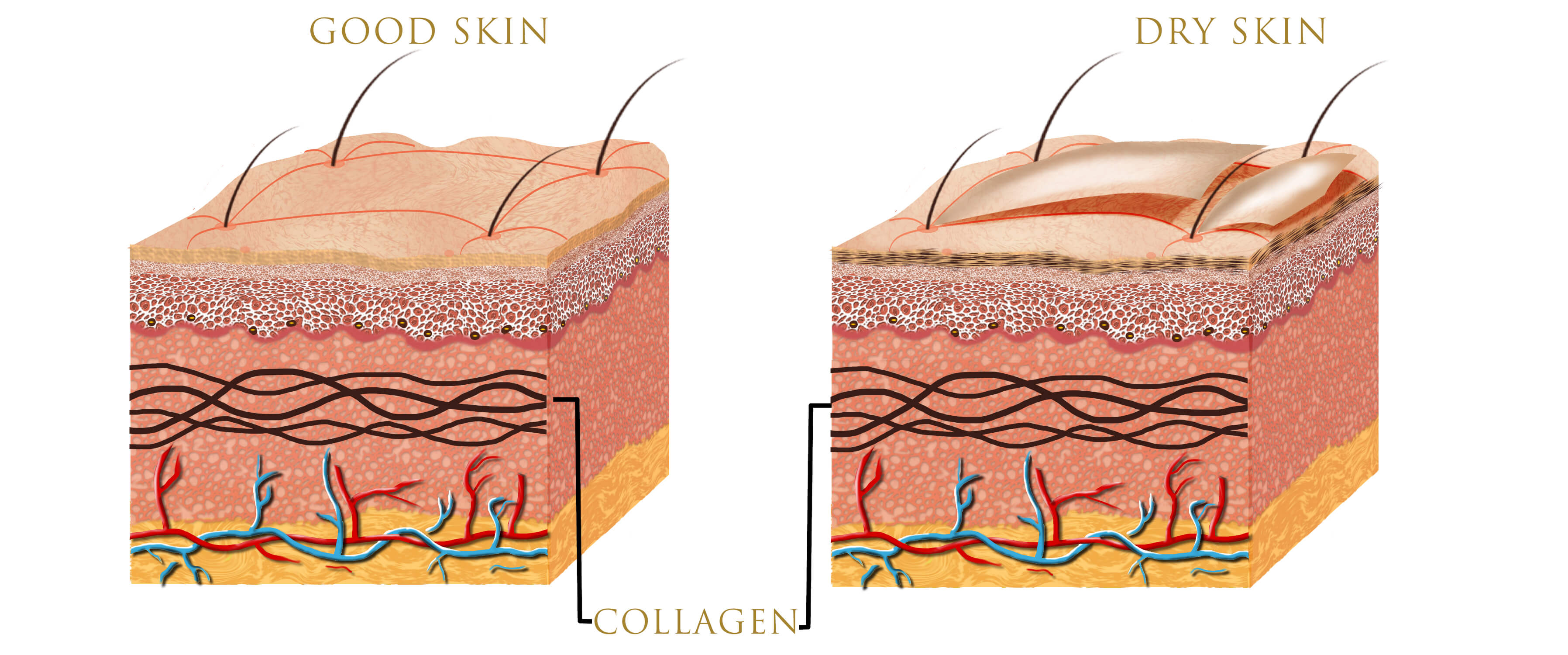 Infographic on layers of skin and the role of collagen