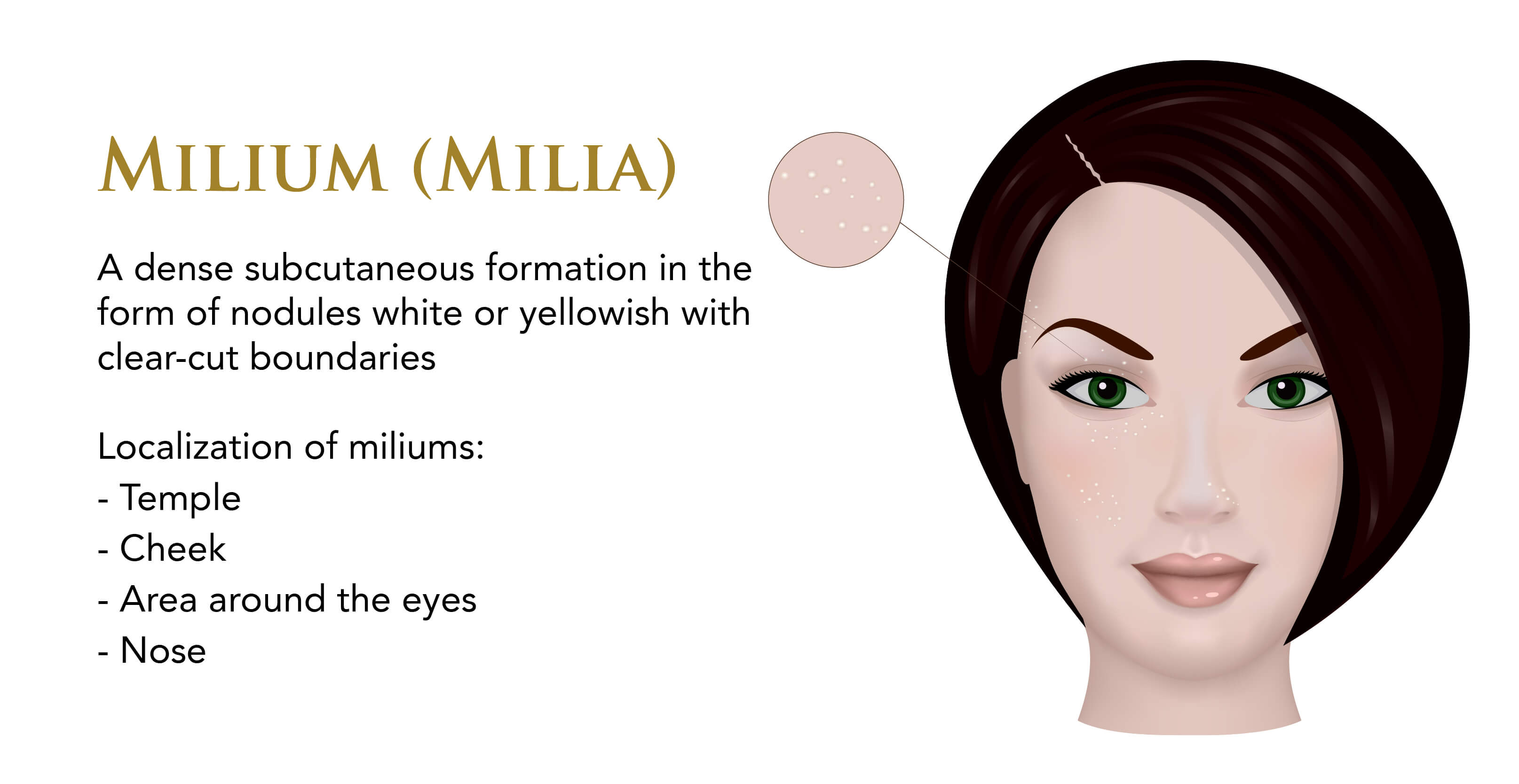 Infographic on milia on the skin