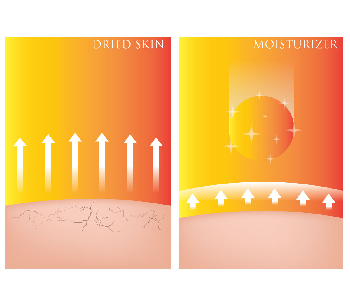 Illustration of dry skin versus moisturized skin