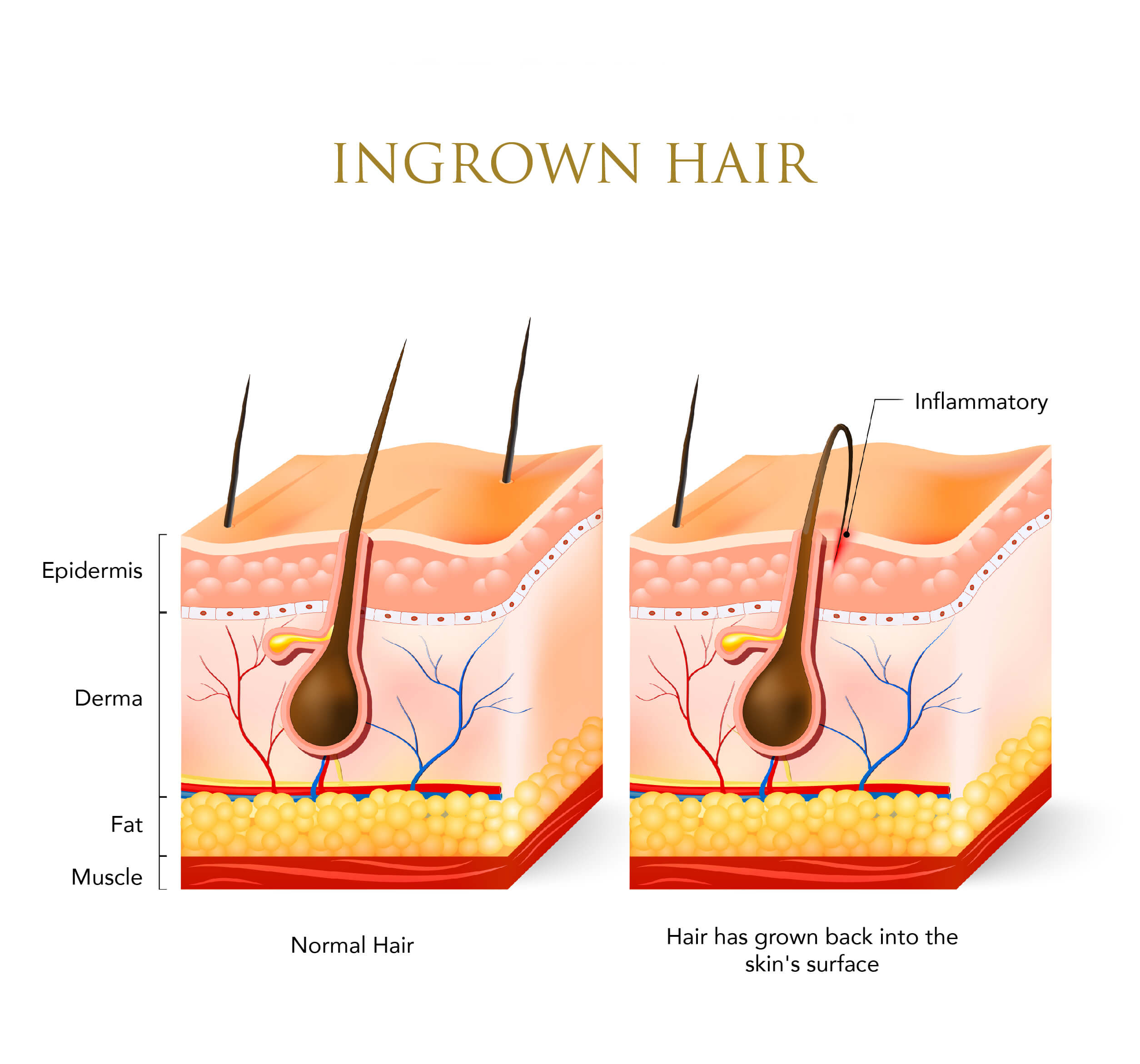 Infographic showing a normal hair and an ingrown hair
